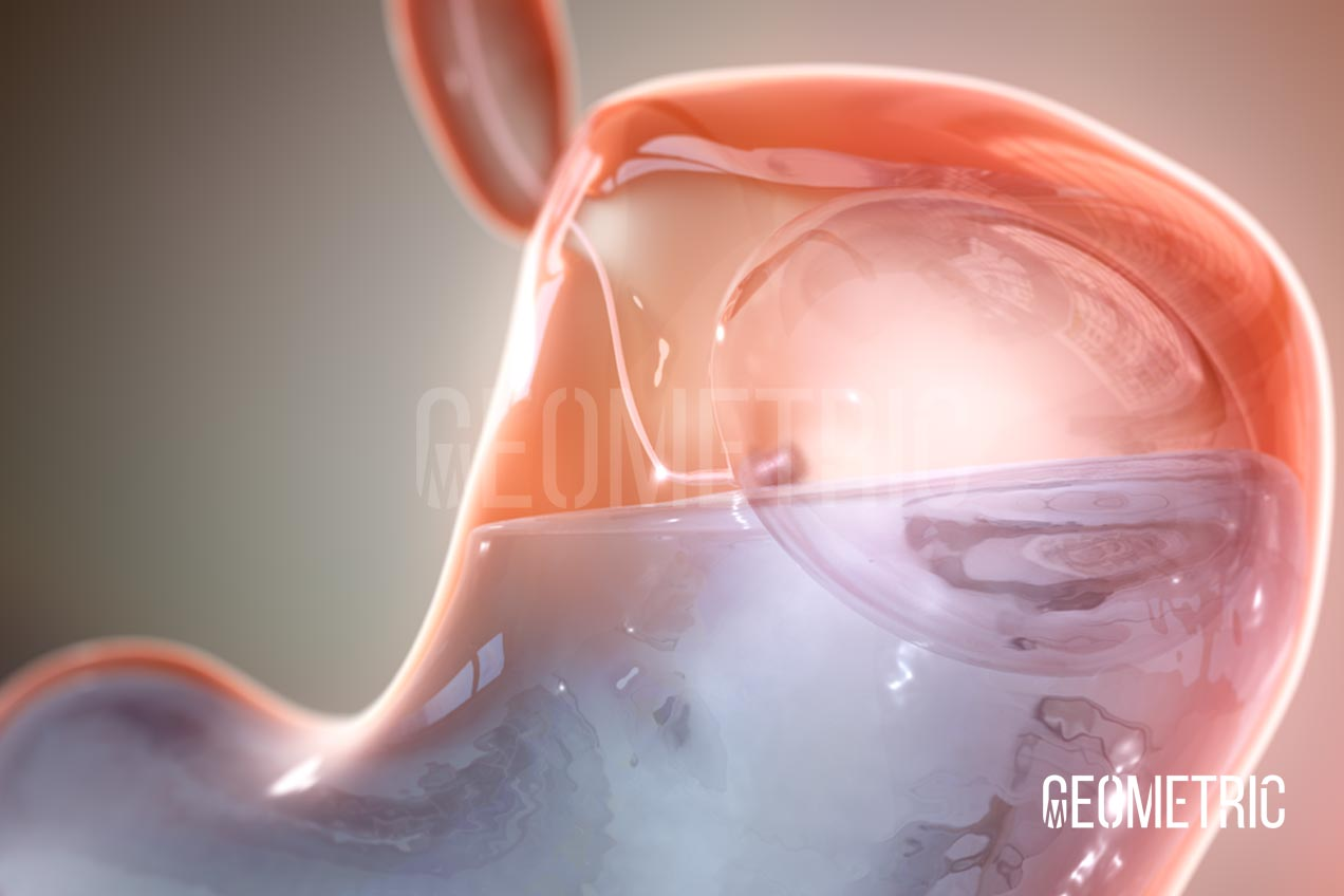 gastric balloon animation