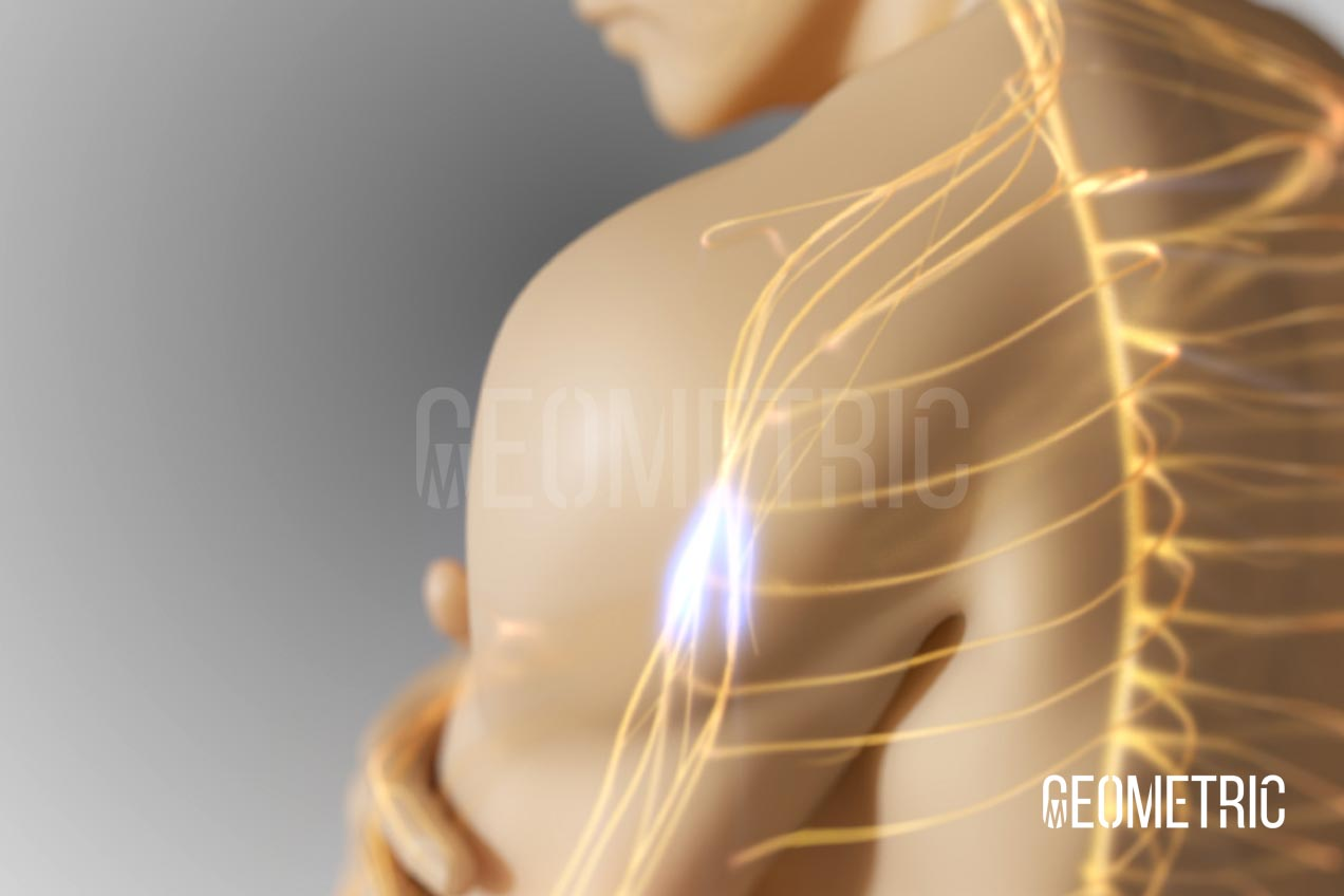 Breakthrough Cancer Pain Animation by Geometric Medical