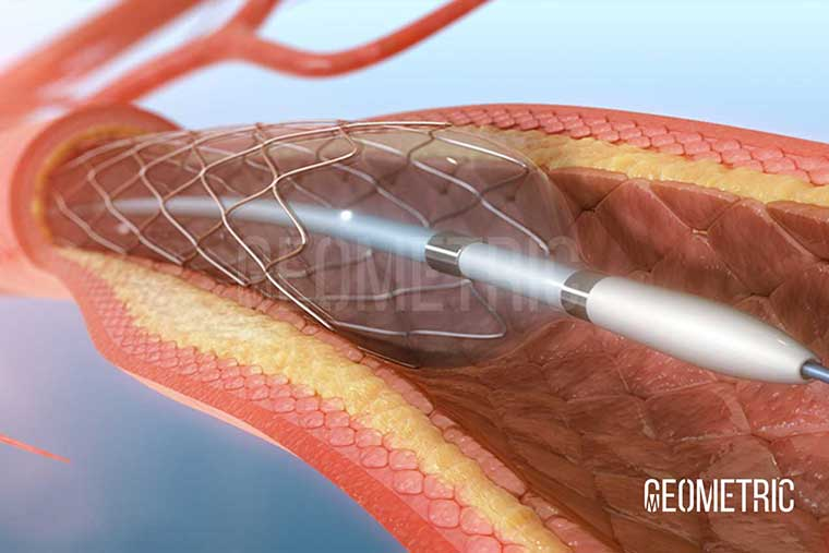 Angioplasty Procedure Illustration